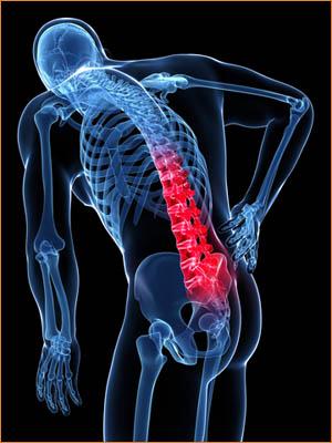 rugpijn lage rugklachten